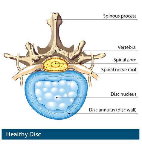healthy disc